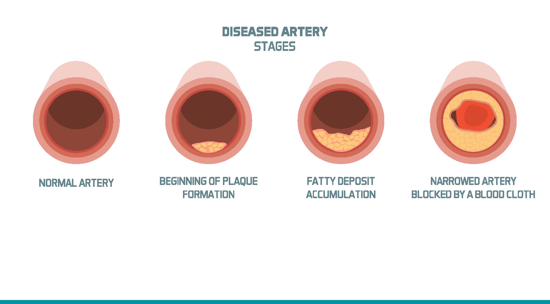 血管と排水管の類似性_ホームエクスプレス